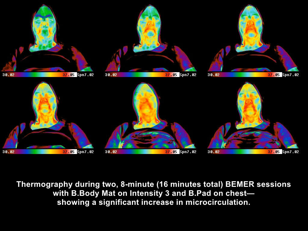 BEMER Thermography Client 1
