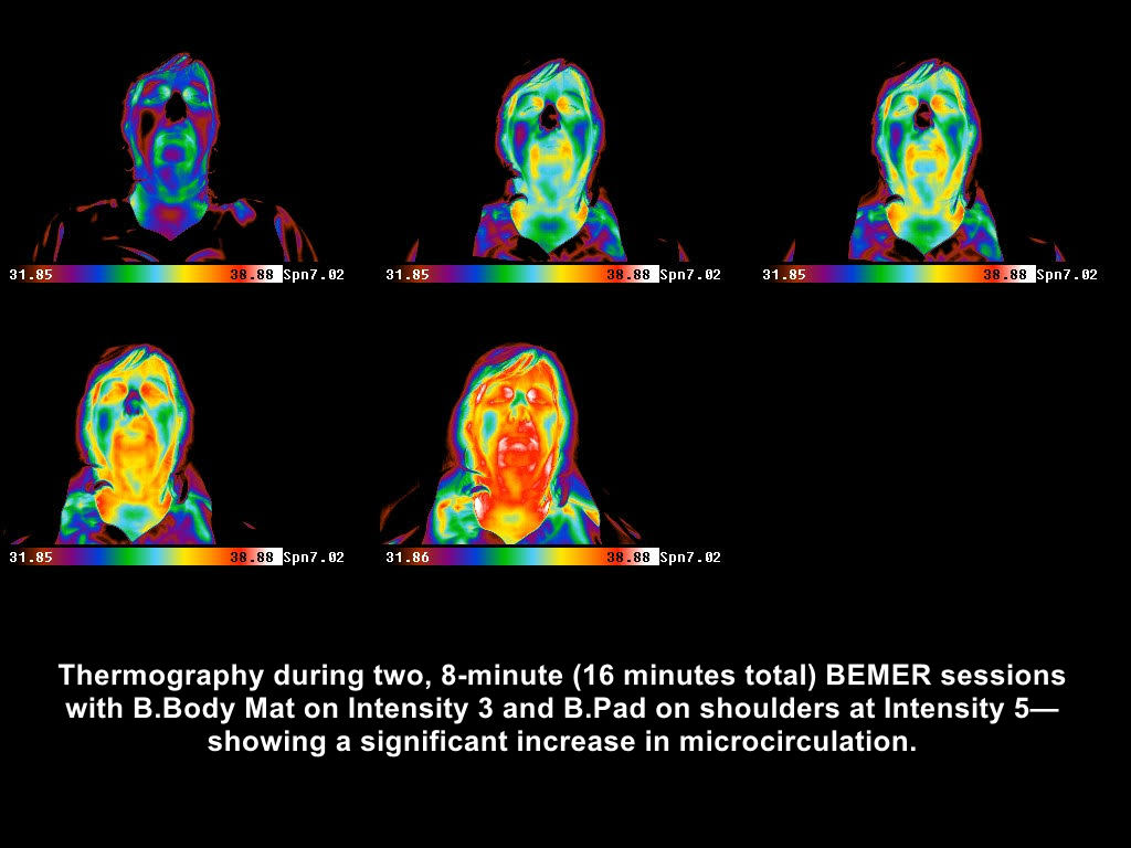 BEMER Thermography Client 2